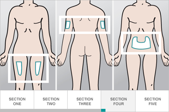 Choose your injection site