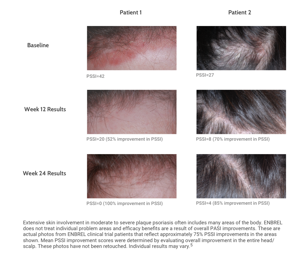 Photos of Patients in Scalp Involvement Study