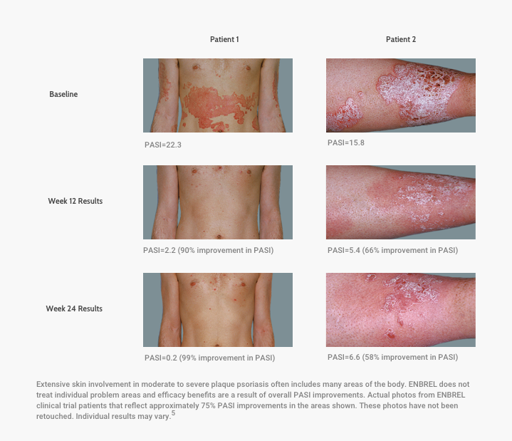 Photos of Patients From the Global Psoriasis Pivotal Trial